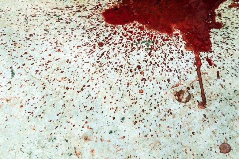 Splattered blood stain